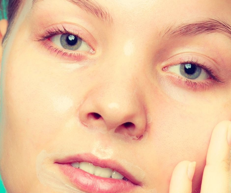 Cách chăm sóc da sau khi peel da từ 4 đến 7 ngày
