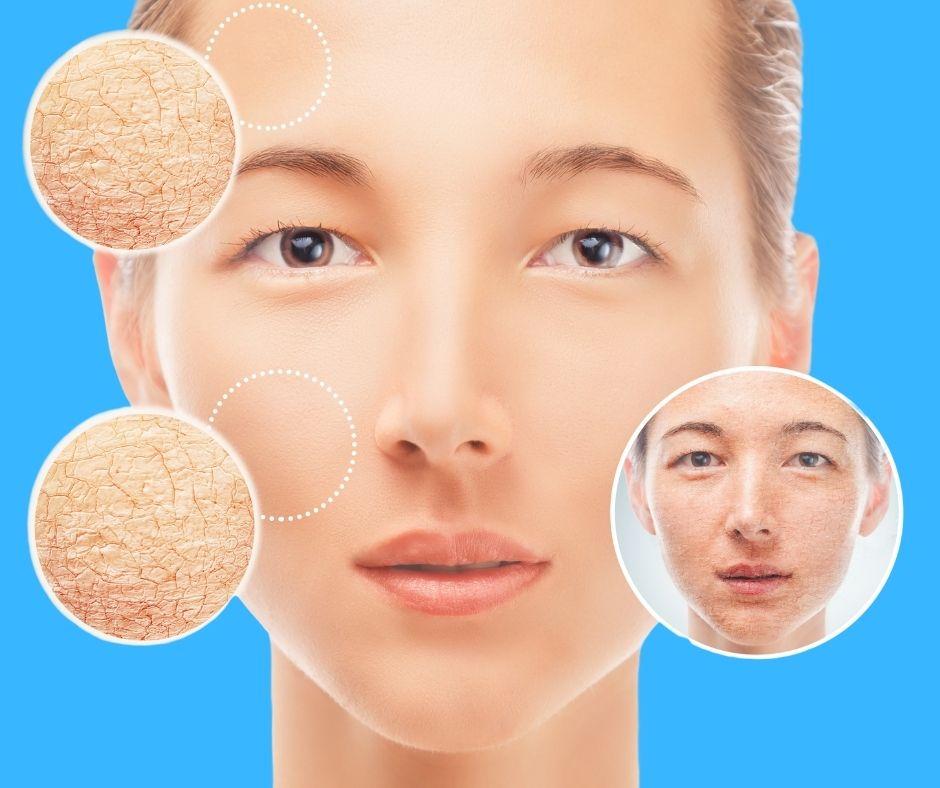 Cách nhận biết và chăm sóc làn da khô